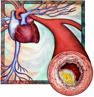 coronary atherosclerotic heart disease
